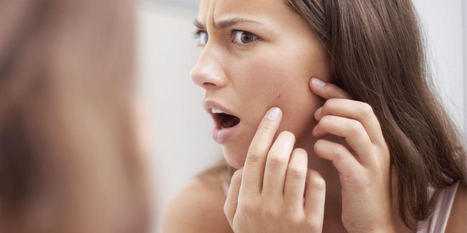 對抗暗瘡玫瑰痤瘡為何無數患者已離不開「壬二酸」?